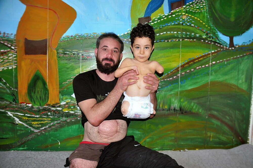Doğuştan engelli Suriyeli Mustafa  protez istiyor